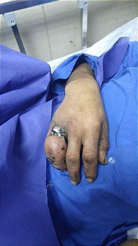 انگشترهای تنگ مردی را روانه بیمارستان کرد