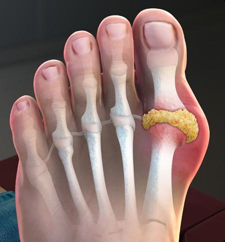remedies-gout02-2
