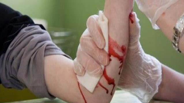 خونریزی