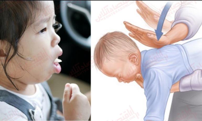 خفگی نوزاد
