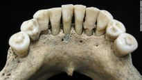 کشف سنگ لاجورد قیمتی در دهان زن هزارساله +عکس