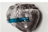 محققان در یک قدمی تولید چسب زخمهای داخل بدن
