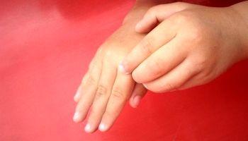 راههای جلوگیری از خارش پوست در زمستان