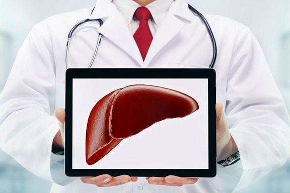 درمان موثر کبد چرب با داروی خوراکی