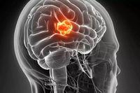 هرآنچه از تومور مغزی باید بدانیم