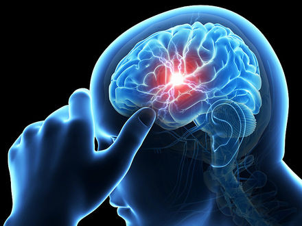 سکته مغزی از عوارض کرونا است