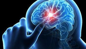 سکته خاموش شایعترین خطر پس از جراحی در میانسالان