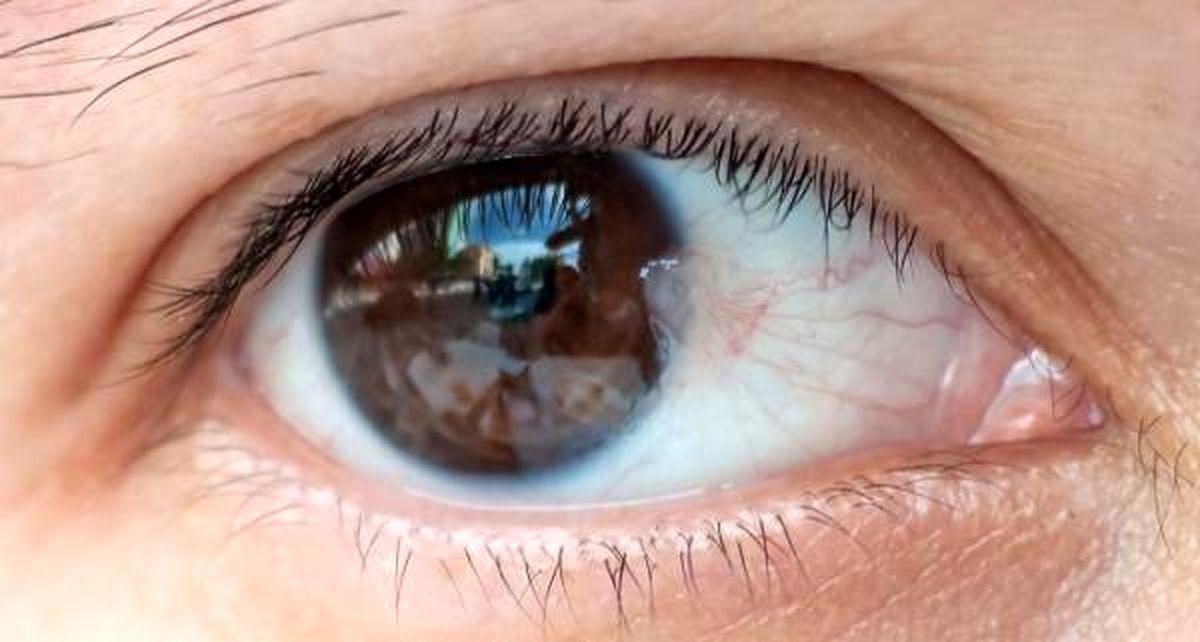 مثلث صورتی داخل چشم چیست؟