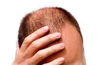 ۱۰ روش برای پرپشت شدن مو برای آقایان