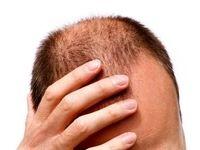 مردانی که دچار ریزش مو هستند، بخوانند