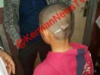 تنبیه وحشتناک دانش آموز کرمانی توسط معلم بی رحم +عکس
