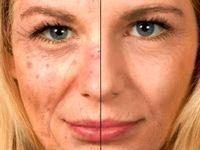 اگر ضدآفتاب نزنیم پوستمان به چه شکلی درمیآید +تصاویر