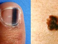 علامتهای سرطان پوست چیست؟