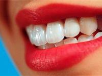 مراقب سفید کنندههای دندان باشید