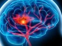 علائمی که خبر از سکته مغزی میدهند