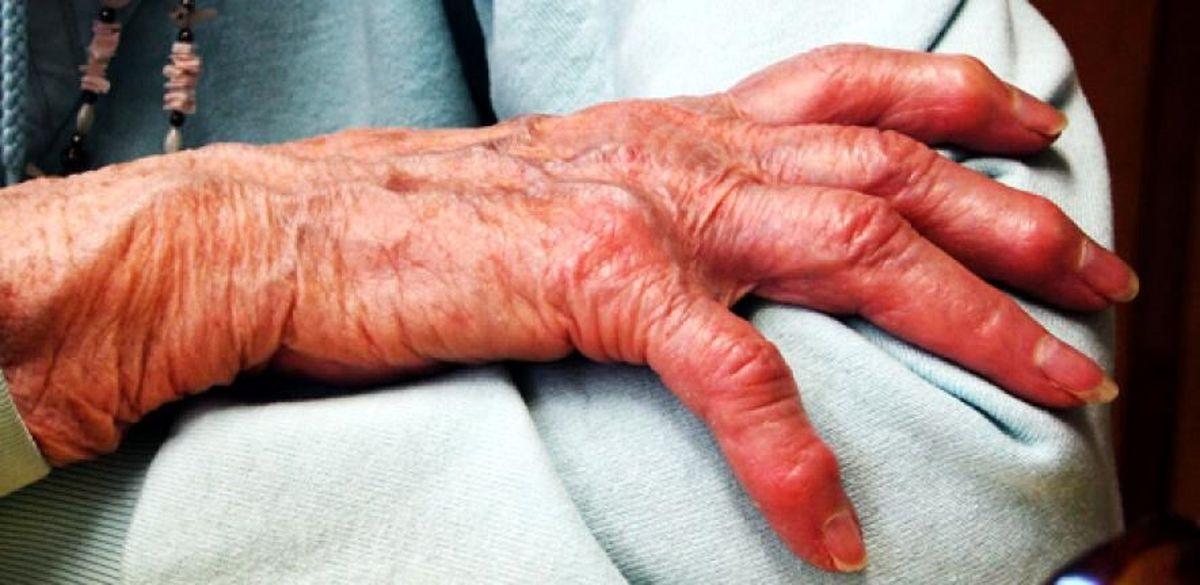 عامل ایجاد درد در آرتروز مشخص شد