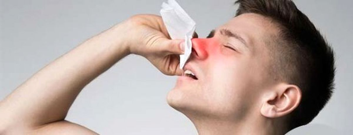 سینوزیت یکی از علل اصلی خون دماغ شدن است