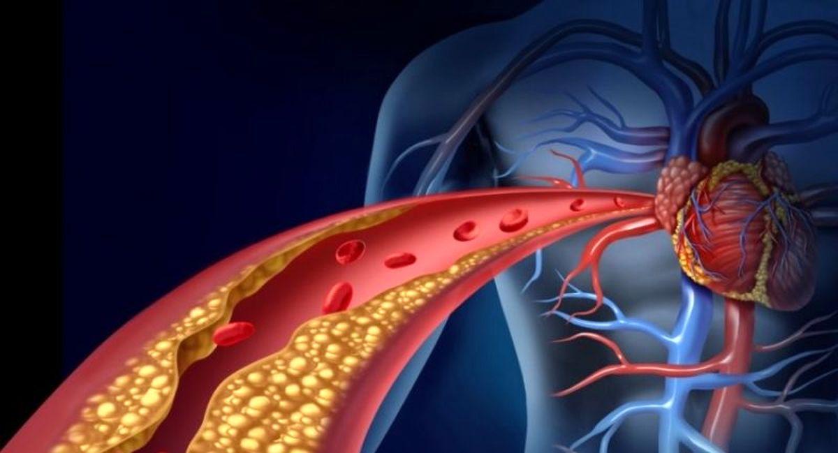 این پروتئین در بدن مانع از لخته شدن خون می شود