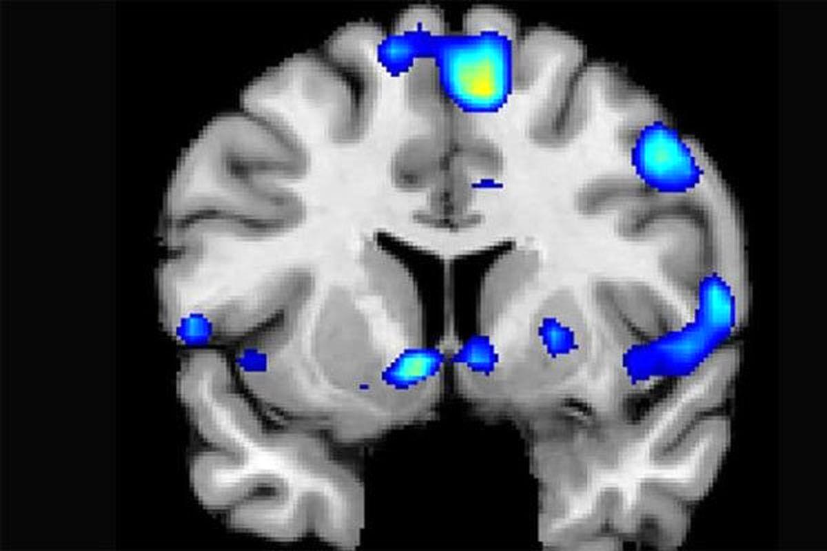 توصیههایی برای کاهش خطر ابتلا به آلزایمر