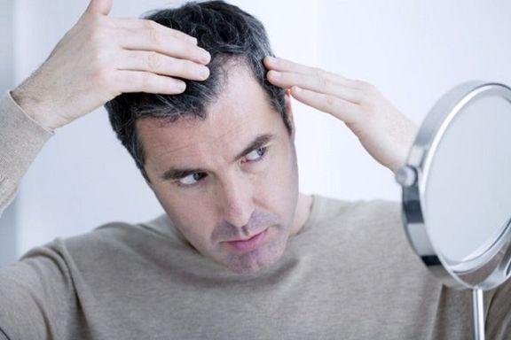 وقتی ژنتیک نقشی در ریزش مو ندارد