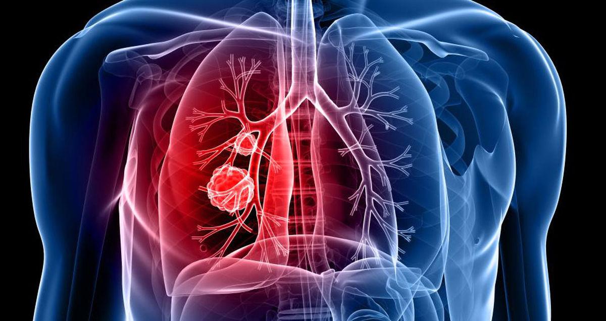 تشخیص سرطان ریه با آزمایش خون و DNA افراد
