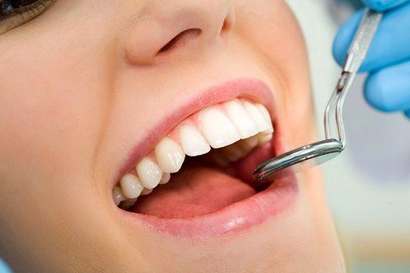 ۵راه طبیعی برای سفید کردن دندانها