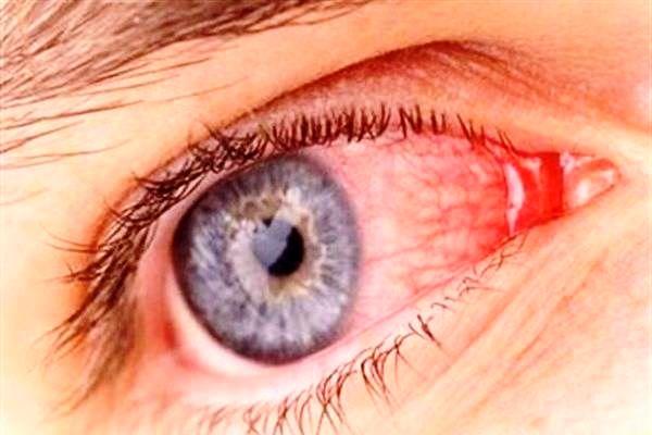 گوشه ی چشم