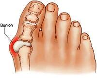 علت انحراف شست پا چیست؟