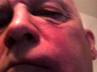 نماینده پارلمان انگلیس بر اثر حمله با آجر زخمی شد