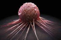 فوت ۵۰درصد از بیماران سرطانی به دلیل تشخیص دیرهنگام بیماری