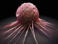 شایعترین سرطانها در ایران کدامند؟