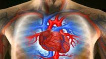 سرفهای که به نارسایی قلبی اشاره دارد