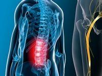 کاهش درد سیاتیک در ۷ حرکت