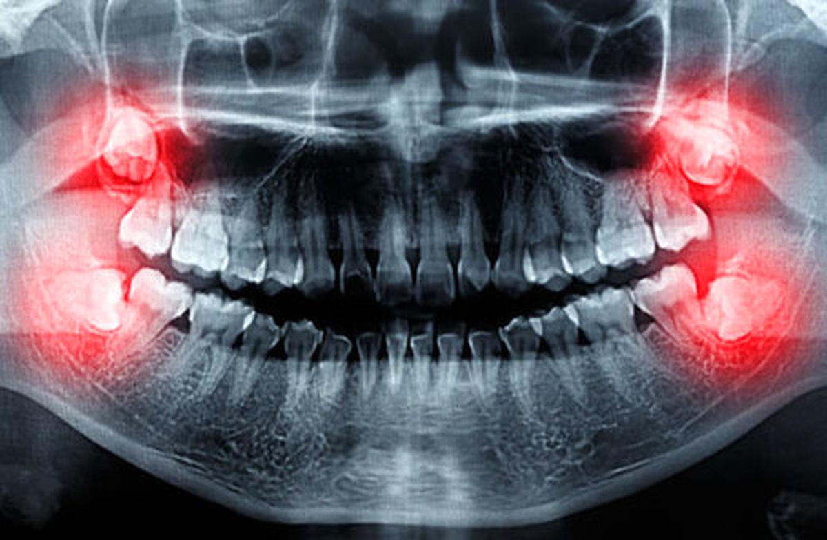 چرا دندان عقل همیشه کشیدنی نیست؟