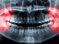 یک نباید بزرگ بعد از کشیدن دندان عقل +تصاویر