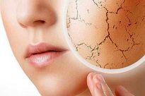 ۷ درمان طبیعی برای خشکی پوست