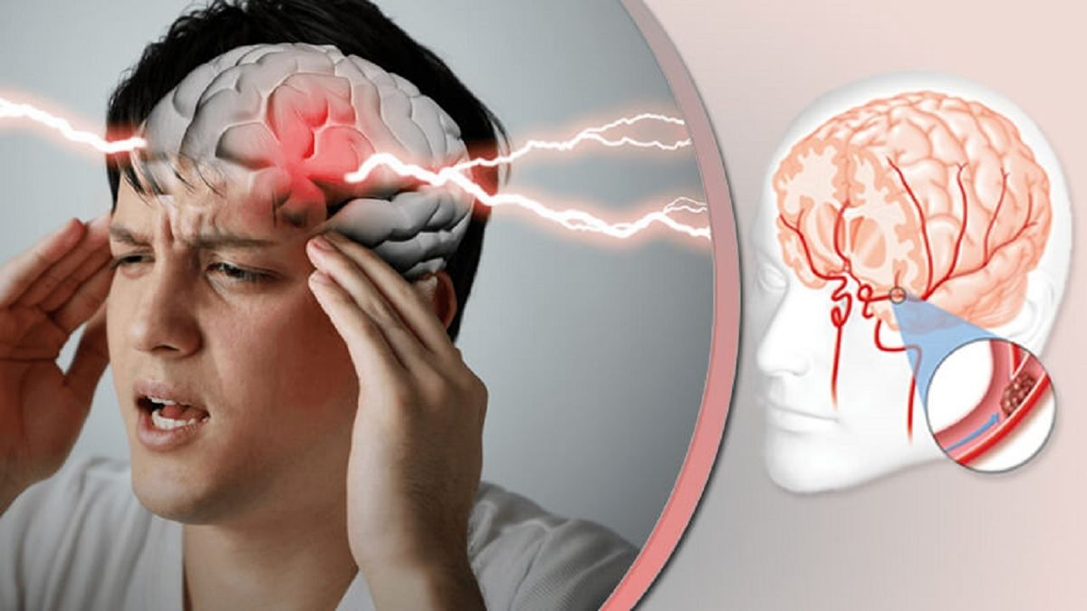 نکات اورژانسی هنگام مواجه با سکته مغزی + فیلم