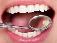 علت حساسیت دندانها چیست؟