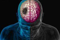 شایع ترین علائم سکته مغزی