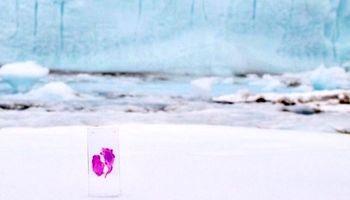 دختری که تومور مغزیاش را به قطب جنوب فرستاد!