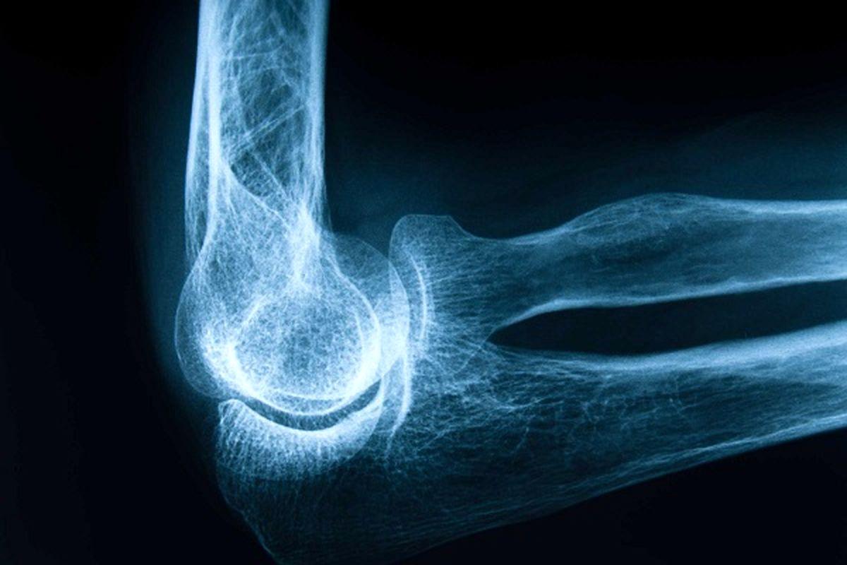 ارتباط استخوان های شکننده با خطر بیماری قلبی در زنان