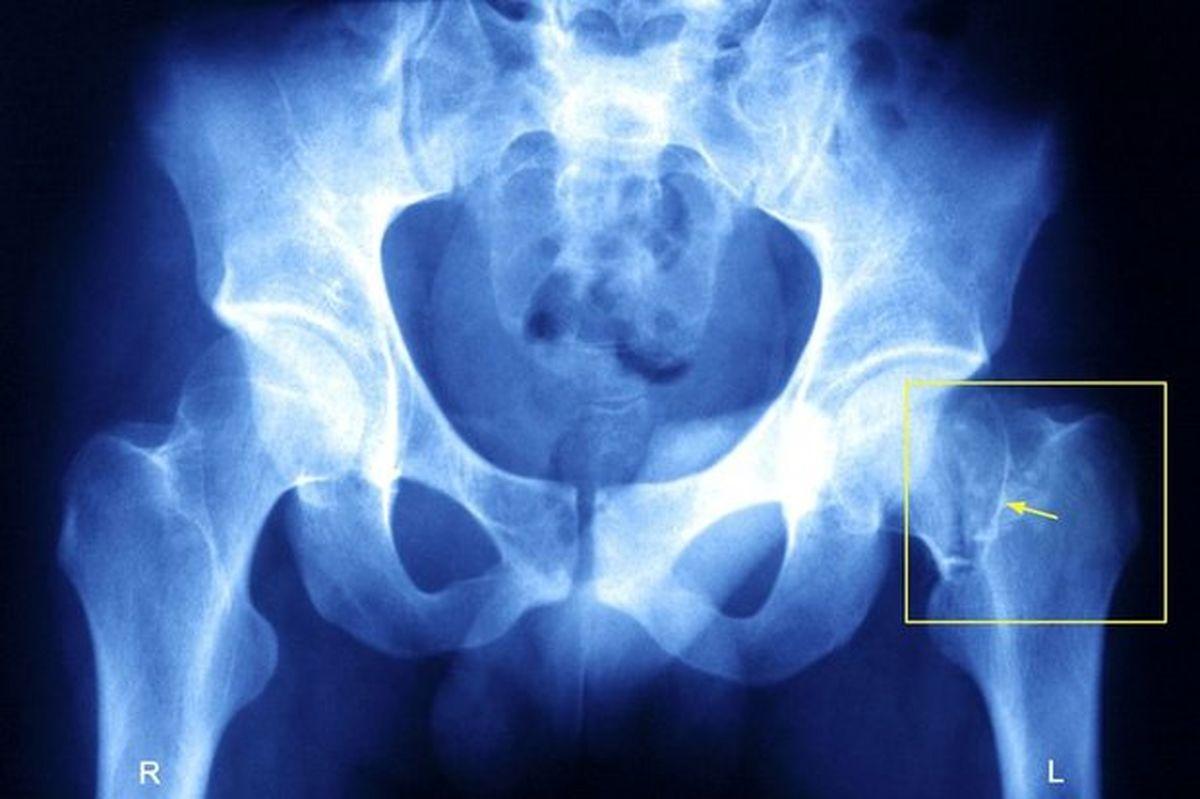 کاهش ریسک شکستگی لگن در زنان مسن با فعالیت فیزیکی