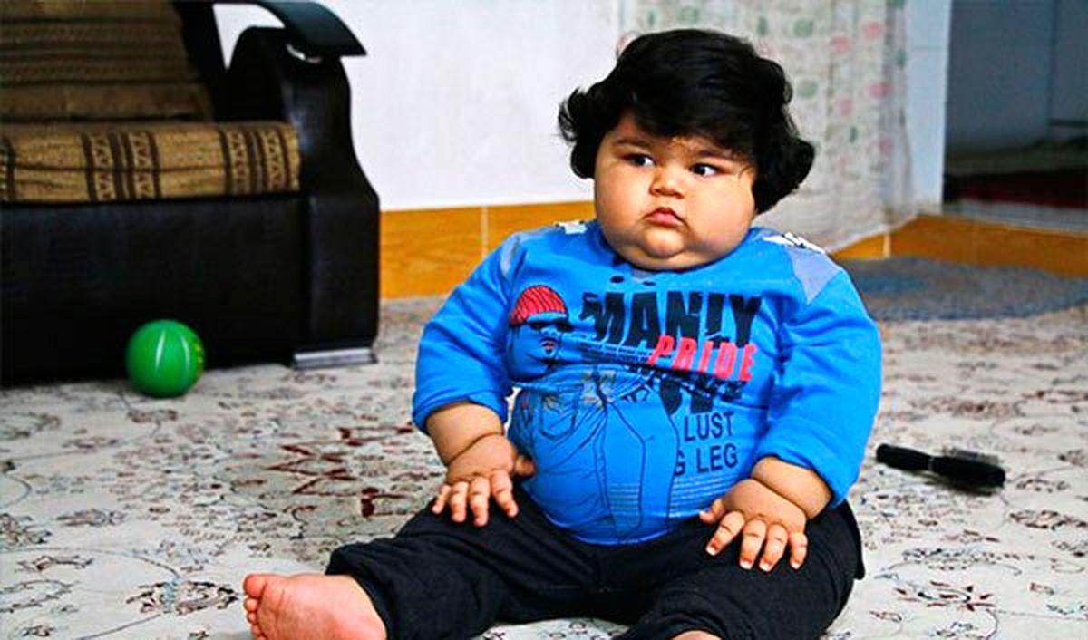 زنگ خطر چاقی کودکان به صدا درآمد