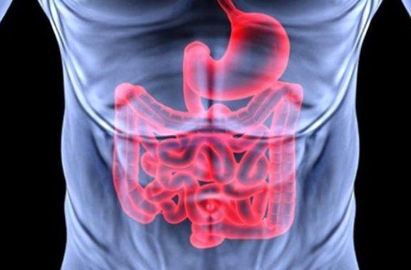 بوعلی سینا انسداد روده را چطور درمان میکرد؟