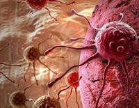 ۳عامل بروز سرطانها کدامند؟