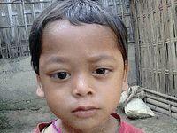 چشمان از حدقه بیرون زده کودک هندی +عکس