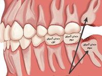 عوارض کشیدن دندان عقل چیست؟