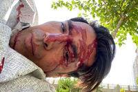 مدافع اسبق استقلال روی تخت بیمارستان +عکس