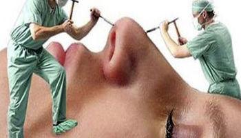 جراحی زیبایی زیر تیغ قانون