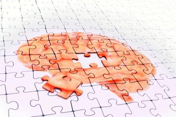 تشخیص علائم زوال عقل توسط ام.آر.آی